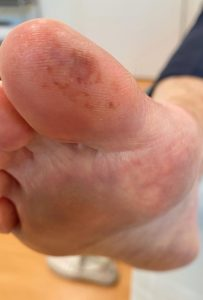 Foot showing chilblains on big toe